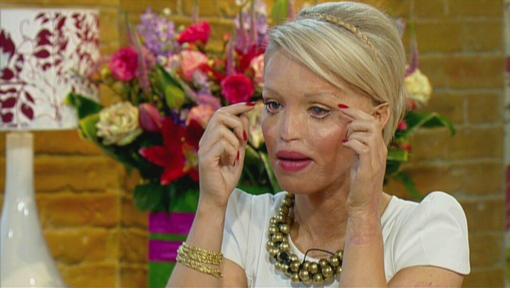 Katie Piper, în anul 2010, la emisiunea The Morning Show, filmată în timp ce explică intervențiile chirurgicale prin care a trecut