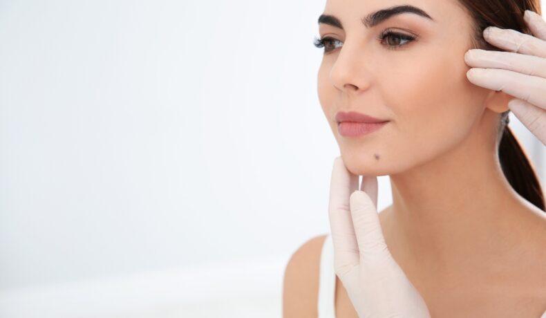 O femeie cu o aluniță pe bărbie este la dermatolog