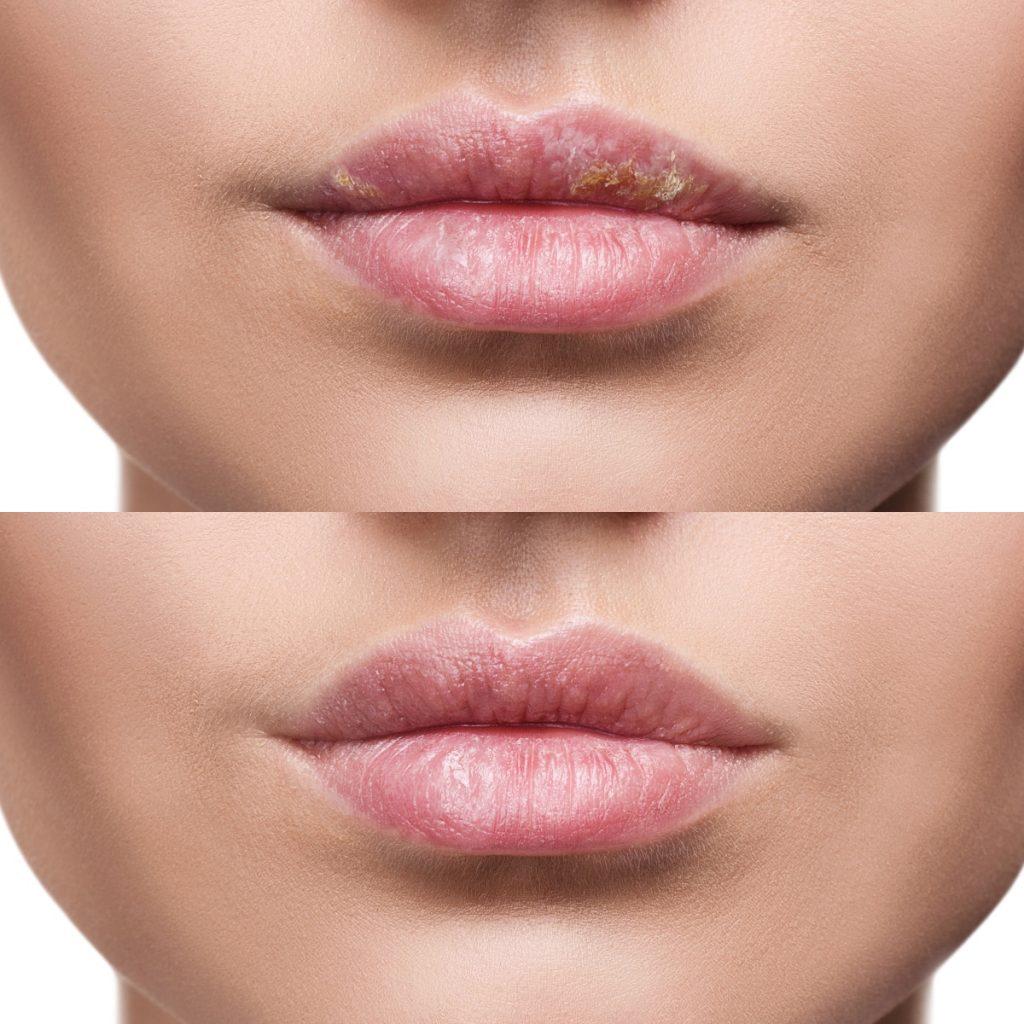 Poza este separată în două părți. Sus sunt buzele crăpate din cauza vântului, iar jos e poza după un tratament, cu buzele sănătoase.