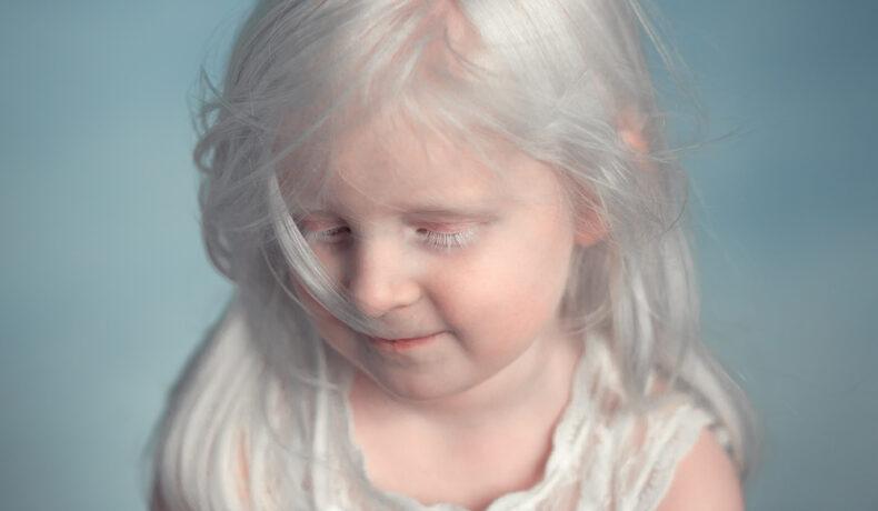 O fetiță care suferă de albinism și care pozează cu o timiditate aparte