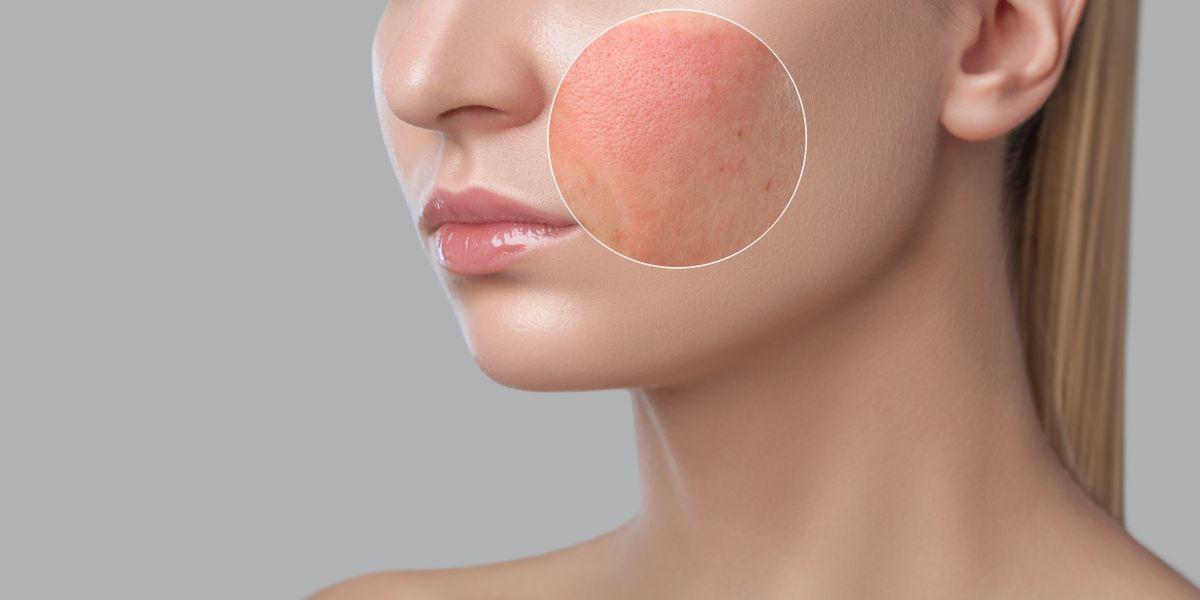 O femeie blondă, cu tenul impecabil, care are pe față o zonă în care tenul este iritat.