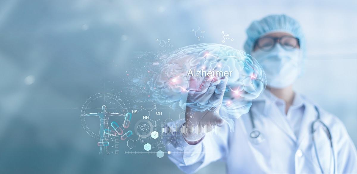 Un medic în halat alb cu mască de protecție care ține în mână o hologramă a creierului pe care este scris boala Alzheimer